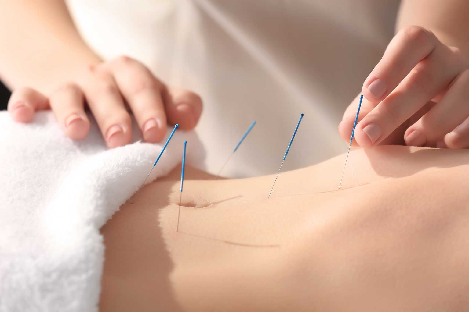 Anytime Physio offers acupuncture for sports injuries