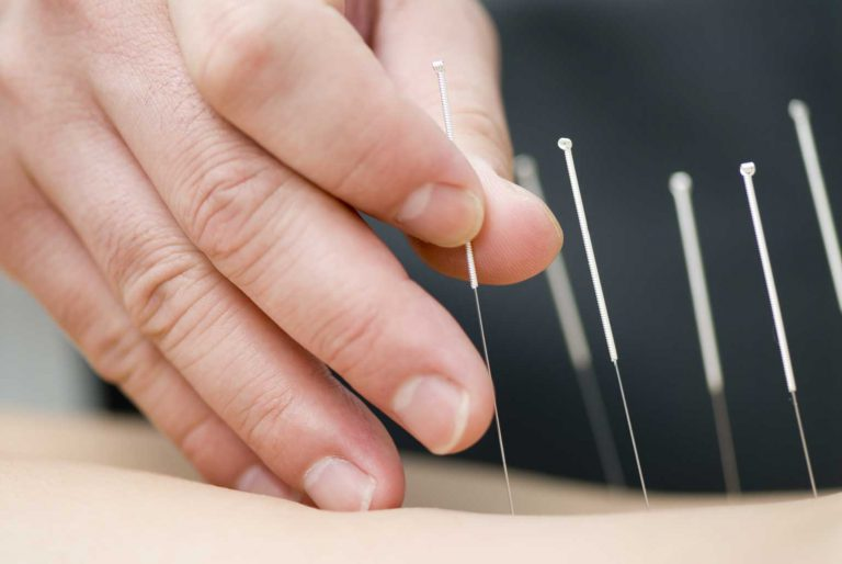 Dry needling is available at Brisbane Anytime Physio in New Farm, Newstead and Clayfield