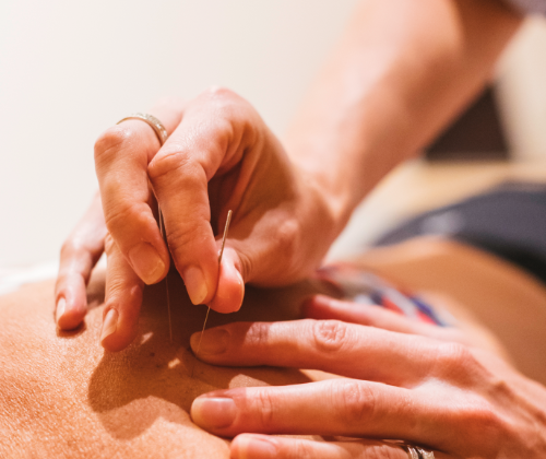 dry needling services